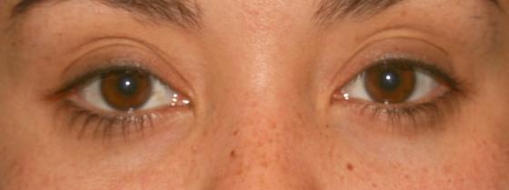 Olho sem maquiagem - Fê Guedes